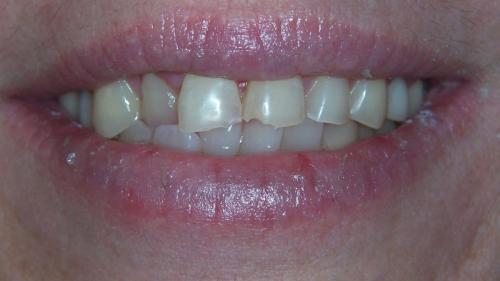 Carlsen---Before-Smile